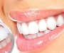 Root Canal Specialist Clinic